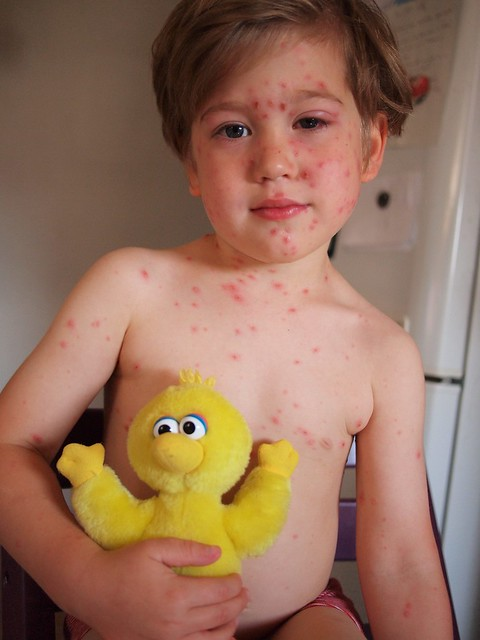 Day four of the chicken pox