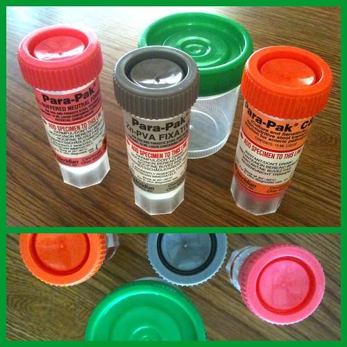 Stool samples