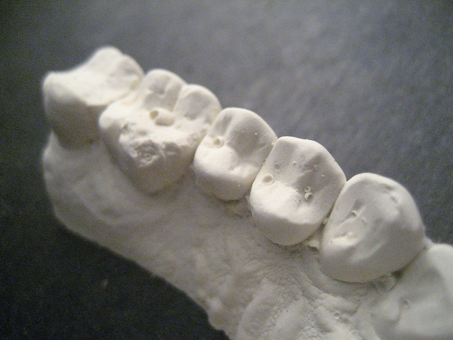 Cast of upper teeth July 2011