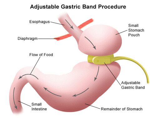 Weight-Loss-Surgery-Alternatives-Gastric-Band-As-opposed-to-Gastric-Bypass-1340.jpg