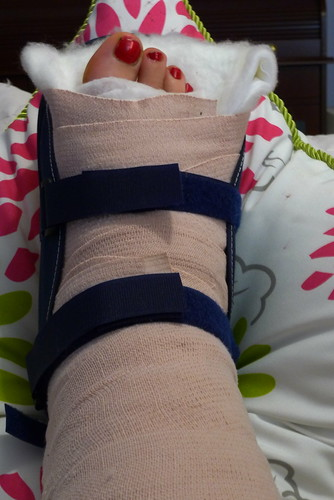 Fractured Ankle