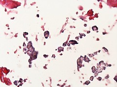 Invasive aspergillosis with calcium oxalate crystals  Case 183 (Pulmonary Pathology) Tags: crystals microscopic specimen pathology lung aspergillus oxalate calciumoxalate aspergillosis