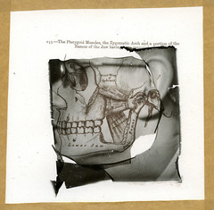 Pterygoid (Skink74) Tags: blackandwhite bw face muscles polaroid skull mono lift body jaw human anatomy ear torn medicine bone macabre transfer biology impossible emulsion emulsionlift graysanatomy impossibleproject px600 px600silvershade roidweek11