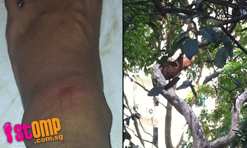 HDB resident stung by bee from 'monster' hive in condo: Who should pay?