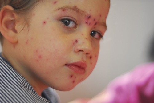 Chicken Pox In Two Month Old Baby