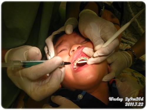 110722-補牙
