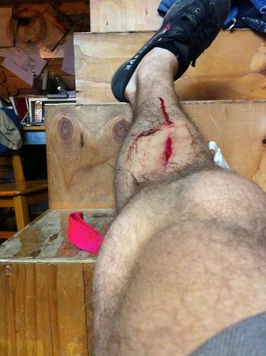 grinder incident