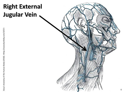 Right external jugular vein - The Anatomy of the Veins Visual Guide ...