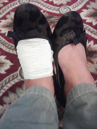 My injured foot wrapped in gauze for cushion. Self-applied.