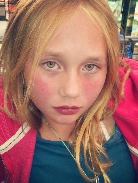 Katie Meningitis 01