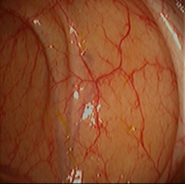 Colon Mucosa Normal