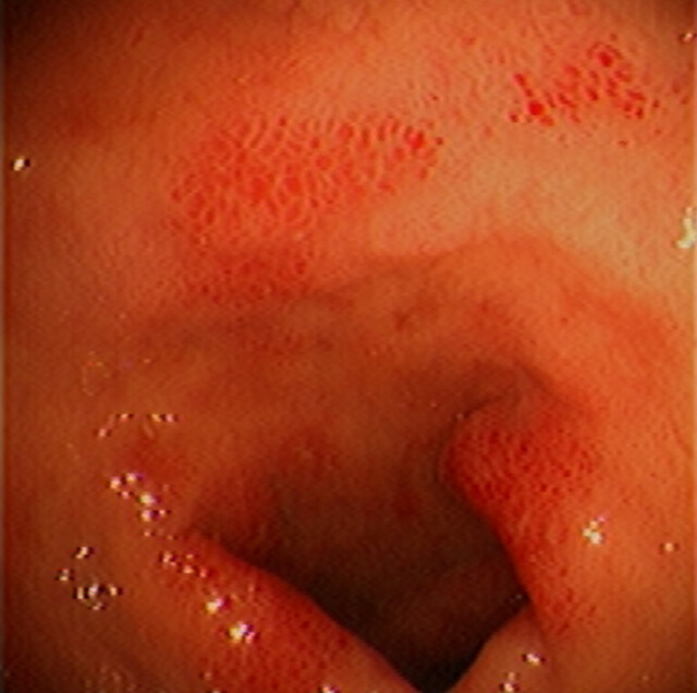 duodenum: acute duodenitis | duodenum | endoscopic images, Skeleton