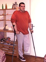 A-crutch01 (ampulove.net) Tags: alex below knee left amputation amputee ampulove