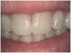 "Fixed front teeth with filling material - After • <a style=""font-size:0.8em;"" href=""http://www.flickr.com/photos/66815972@N07/6082997687/"" target=""_blank"">View on Flickr</a>"