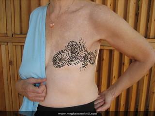 Mastectomy empowerment