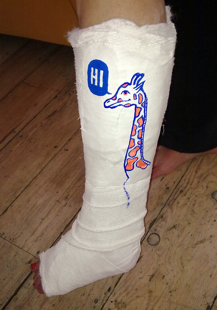 Beth's leg
