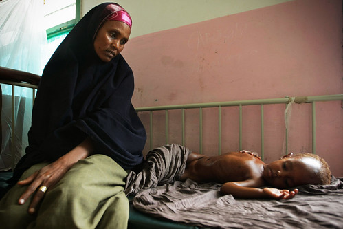 Somali Mother Seeks Treatment for Malnourished Child
