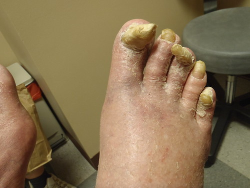 Thick Painful Toenails is Fungus - a photo on Flickriver