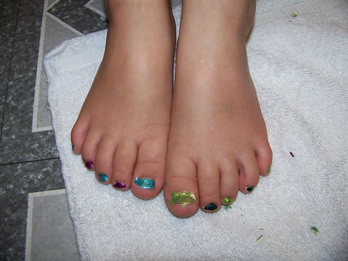 Q5 toes