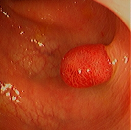 Colon: Polyp, Removal (Polypectomy)