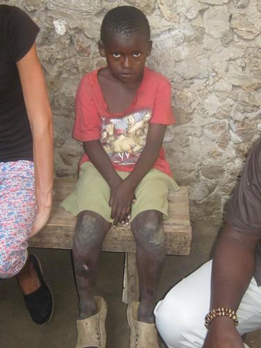 Kanoti aged 7 years old