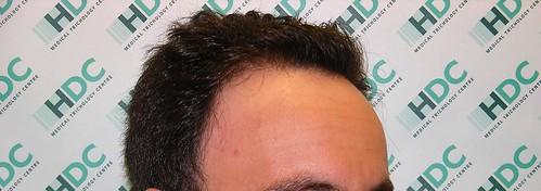 Bild framifrån by Hairtransplant