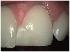 "Poor filling shape - Front tooth - Before • <a style=""font-size:0.8em;"" href=""http://www.flickr.com/photos/66815972@N07/6083540494/"" target=""_blank"">View on Flickr</a>"
