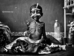 X-ray (majedphotos.com) Tags: africa bw hospital child dry hunger drought horn somalia mogadishu directaid