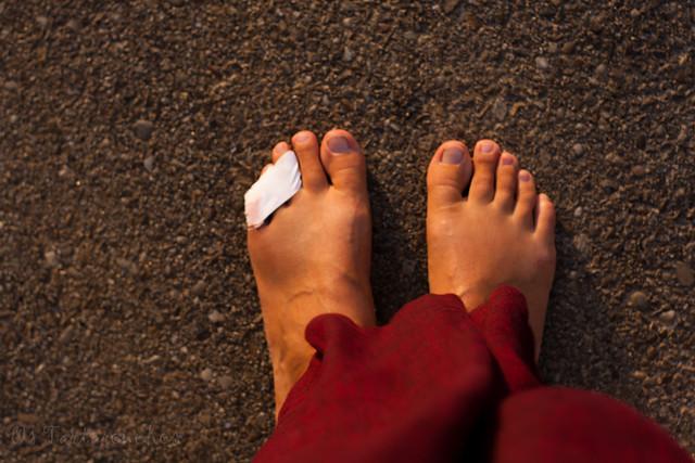 a deda lesionada