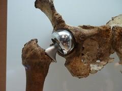 Hip replacment detail (nangeloni47) Tags: skeleton washingtondc smithsonian replacement artificial human bone hip femur joint forensics smithsonianinstitution nationalmuseumofnaturalhistory