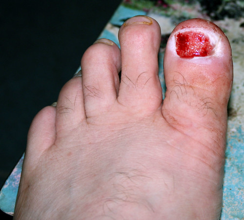 Ingrown Toenail After Removal