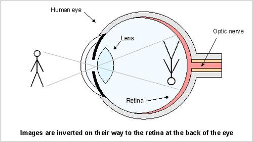eyefloaters4