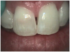 "3 week mid-treament - Internal bleaching • <a style=""font-size:0.8em;"" href=""http://www.flickr.com/photos/66815972@N07/6083541020/"" target=""_blank"">View on Flickr</a>"