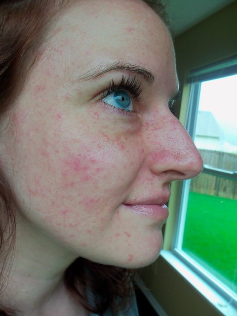 Petichiae update. 6 months postpartum after 2 photofacials (one was yesterday)