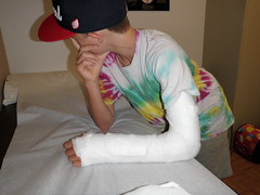 soft cast removal