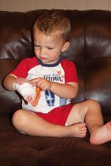 Nixon burns hand_09-03-11