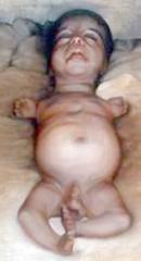 Iraq_Depleted_Uranium_Baby_02
