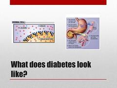 Diabetes Illustration
