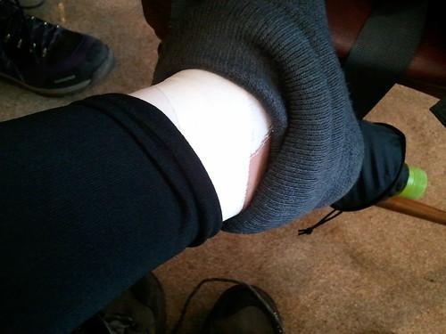 下山開始早々から左足を痛め、テーピングして下山。傷口見せたら、いささか疑惑の眼差しなう。