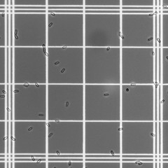 0754 (10 sec. Rule) Tags: worklife conidia metarhizium entomopathogen hemocytometer