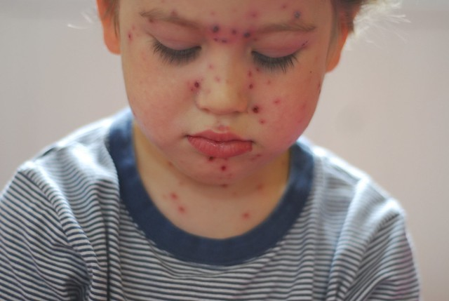 Day six of the chicken pox.