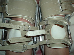 Closeup of Kneepads and Thigh Cuffs (KAFOmaker) Tags: leather high shoes legs braces sandals leg bondage strap heels buckle brace straps sandal cuffs buckles restraints bracing restraint orthopedic strapped braced strapping buckled legbrace legbraces legbraced braceswithheavykneepads legbracing