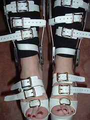 Great Picture of Tightly Strapped Shins, Ankles, and Feet (KAFOmaker) Tags: sexy feet leather fetish foot shoe high shoes highheel legs braces sandals leg platform bondage strap heels heel tight bound buckle straps sandal platforms strappy restraints bracing restraint heeled buckling braced strapping buckled legbrace legbraces tlso legbracing