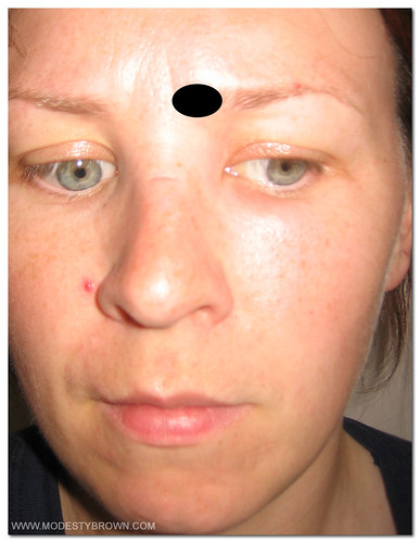 orbital cellulitis3