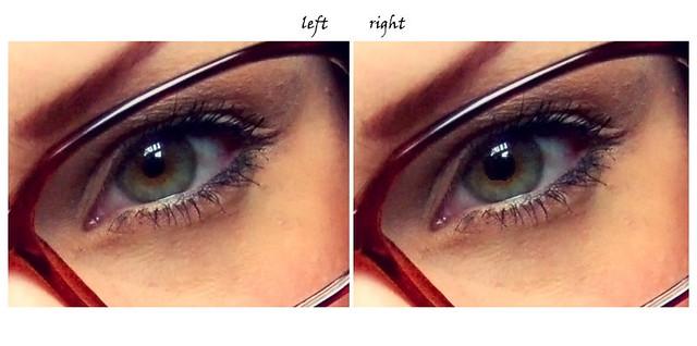 Pupillen