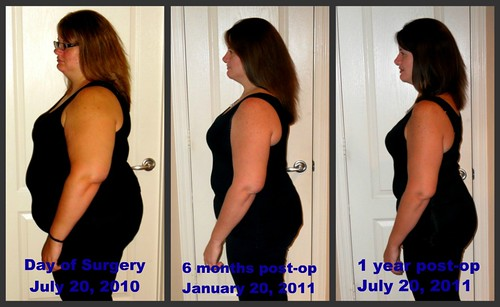 Weight Loss Surgery My Story Brittany Herself Curvy