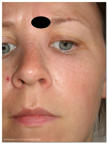 orbital cellulitis1