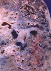 Sarcoidosis - Aspergilloma (Pulmonary Pathology) Tags: gross specimen pathology lung macroscopic aspergillus sarcoidosis mycetoma aspergilloma