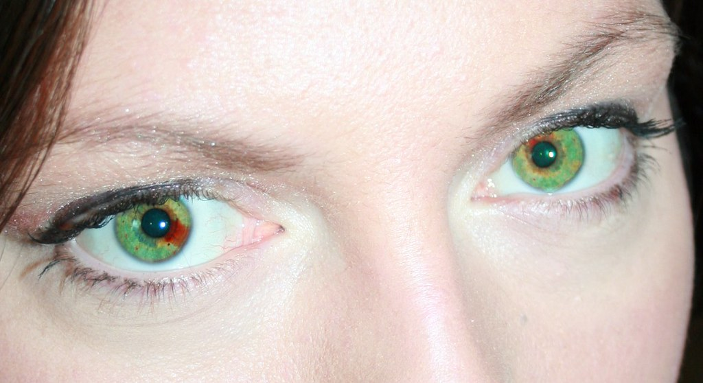 The World's Best Photos of heterochromia and sectoral ...