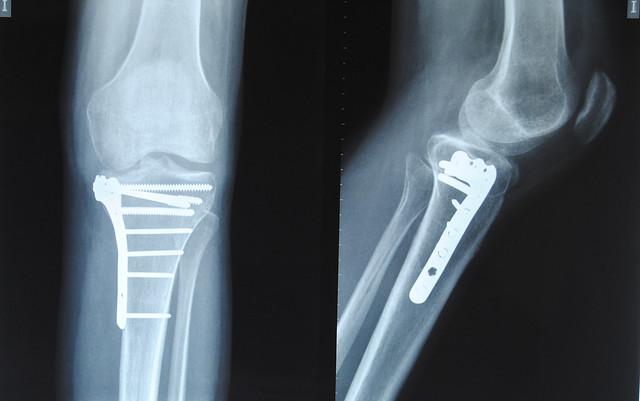 Linki-rodilla de titanio